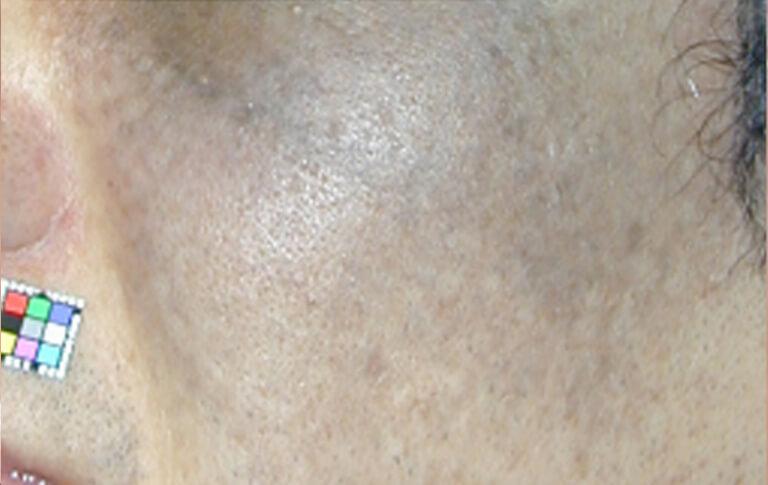 太田母斑。顔面片側あるいは両側に青いあざがあります。