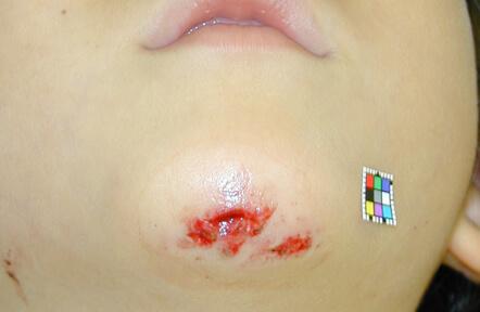 転んで顎を切りました。よく受傷する部位です。縫合治療を行いました。