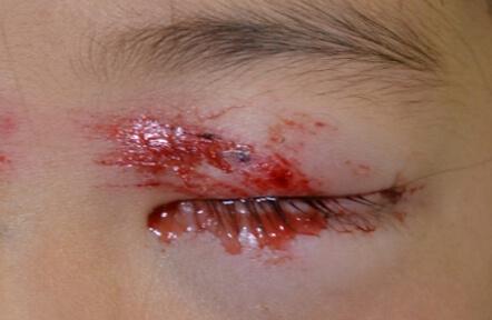 やぶに顔から突っ込んでしまい、目の周りを切りました。涙小管という涙の通り道が断裂していました。
