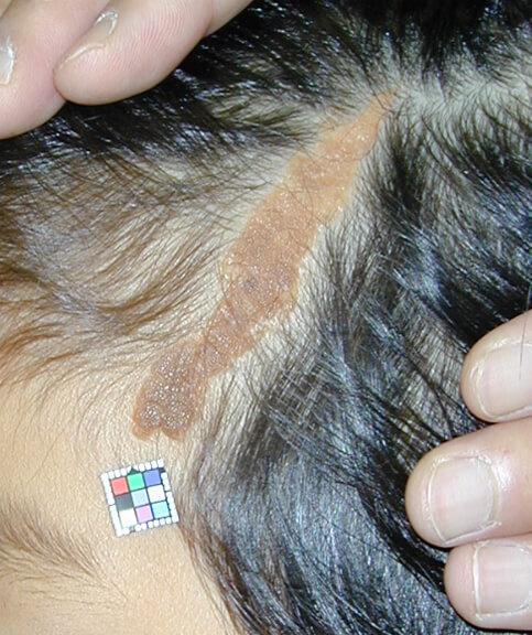 左側頭部の脂腺母斑です。