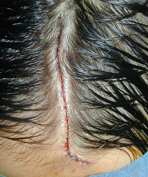 切除し、特殊な方法で縫合しました。 この方は全身麻酔での手術を行っています。