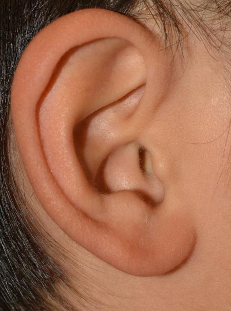 臭い 耳 瘻孔